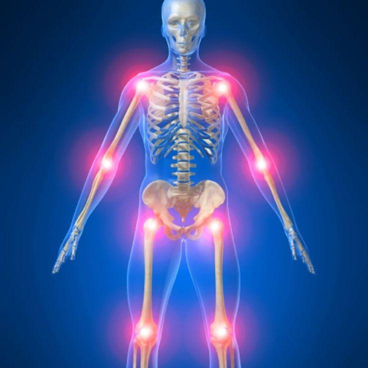Изображение - Лечение касторовым маслом суставы 71647c6761c394a5c4bdd8acd440eb3d-vitamin-d-deficiency-pain-management
